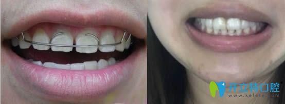 解答:牙缝大能补吗?补一个牙缝需要多少钱附补牙缝过程图解