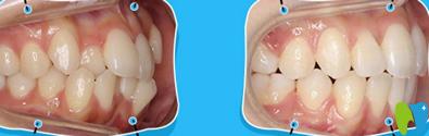 福州格莱美口腔吴和峰牙齿隐形矫正案例
