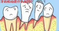 专家解析:牙齿松动是什么原因及牙齿松动了能自己恢复吗
