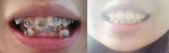 分享高中毕业后在泉兴口腔做牙齿矫正经历,共花费12000元