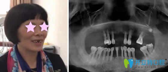 老妈在重庆华诺世口腔做即刻种植牙的个人经历分享