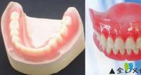 为什么很多活动假牙会失败 一口好的活动假牙价格是多少钱