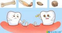 做了种植牙后能咬多硬的东西?有关种植牙的误区看这里
