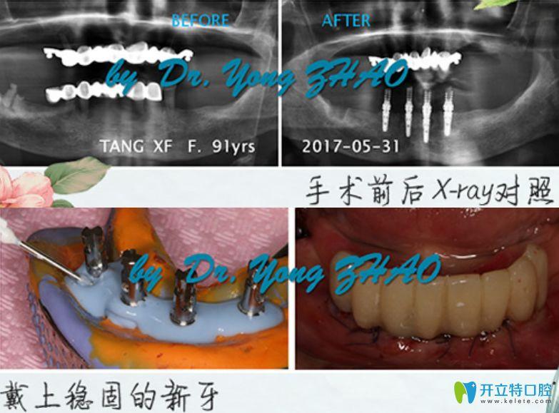 深圳陈静口腔赵勇亲述为91高龄妈妈做all-on-four种植牙案例