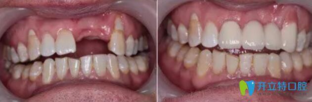 属于全好口腔的单颗牙种植案例对比