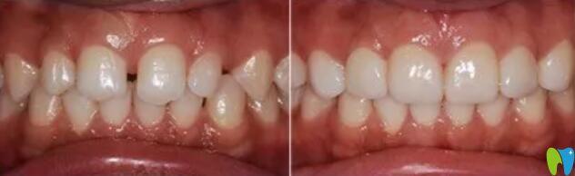 在沈阳全好口腔做了牙齿美容冠案例前后效果对比图