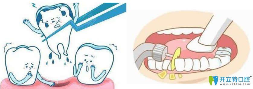 整牙片切和拔牙哪个好?揭秘做的片切正畸后悔死了的原因