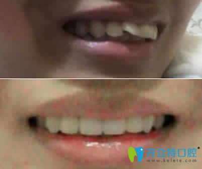 吃什么东西容易怀孕_为什么牙齿矫正后容易长蛀牙?如何有效预防矫正中出现龋齿 ...