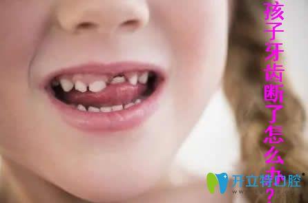 小孩的牙齿断了怎么办?点击了解儿童牙齿修复的方法