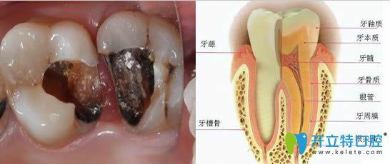 什么情况需要根管治疗?苏州锦城口腔深度解析根管治疗术