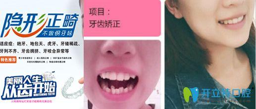 昆明竹子口腔隐形牙齿矫正对比图