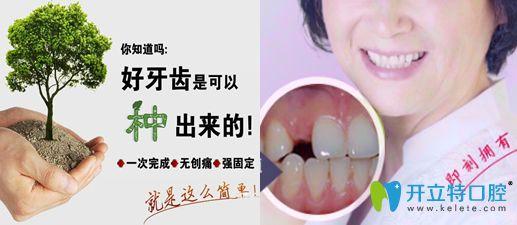 竹子口腔仿生种植牙案例
