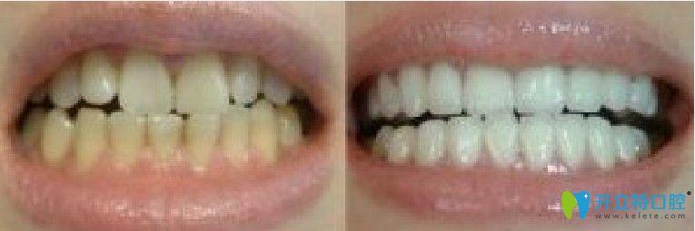 竹子口腔牙齿冷光美白前后对比图
