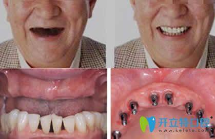 昆明竹子口腔全口牙种植效果