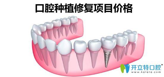 大连口腔种植牙价格