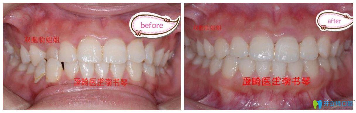 茁悦口腔牙齿错颌畸形矫正案例效果对比