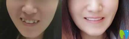 上海优德口腔董宏伟医生牙齿矫正案例