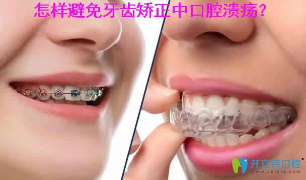 怎样避免牙齿矫正中口腔溃疡