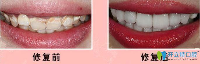重庆茁悦口腔瓷贴面修复牙齿案例前后效果对比