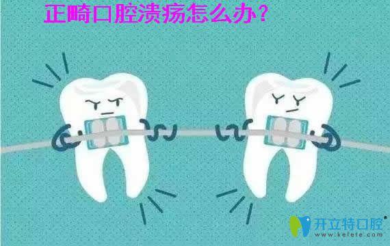 正畸口腔溃疡怎么办