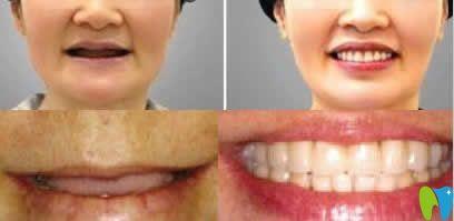 上海优德口腔全口种植牙案例
