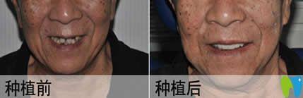 上海优德口腔种植牙案例效果