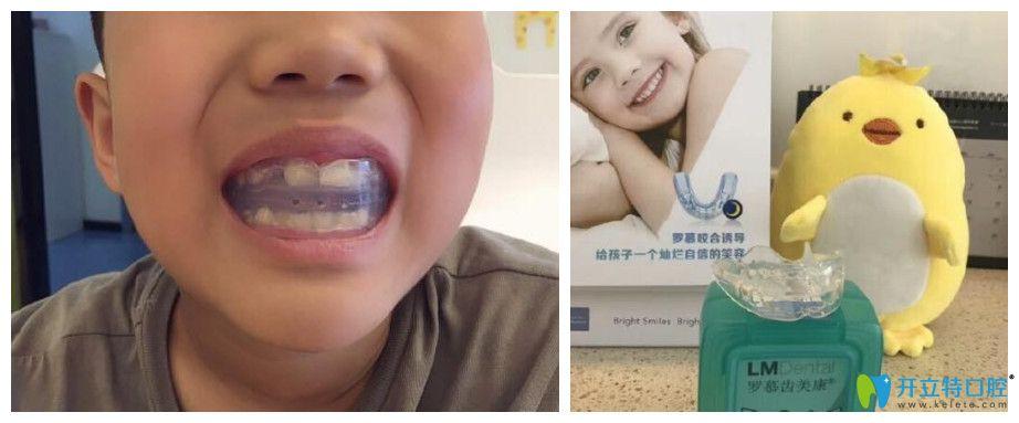 重庆牙齿矫正哪里好?茁悦口腔牙齿正畸案例效果来说明
