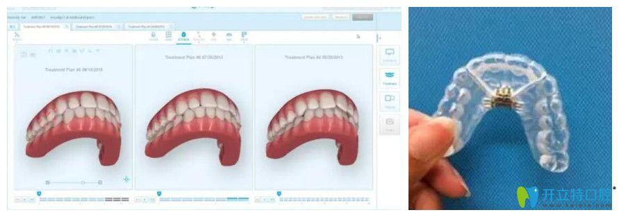 3D扫描后电脑上形成的3D模型及后期咬合微调阶段牙套模型