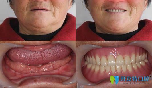 BPS生物功能吸附性义齿案例对比效果图