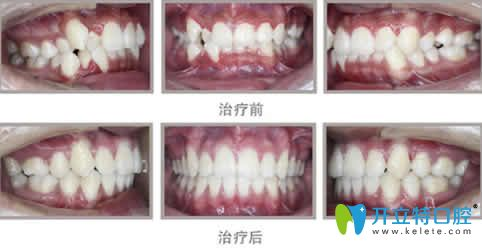 牙齿拥挤不齐拔牙后矫正前后对比图