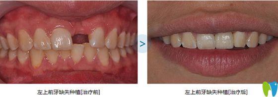 维乐口腔单颗牙缺失种植效果