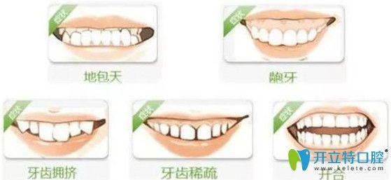 造成牙齿咬合问题的原因