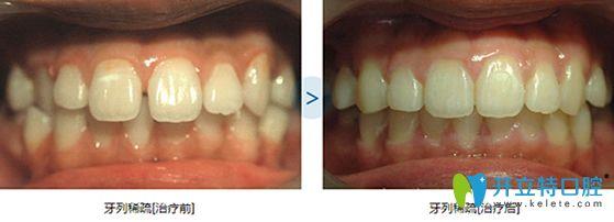 泉州维乐牙齿稀疏隐形矫正前后对比图
