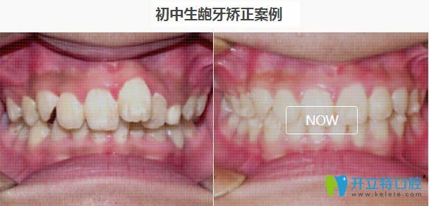 上海德伦刘志新龅牙矫正七个月案例