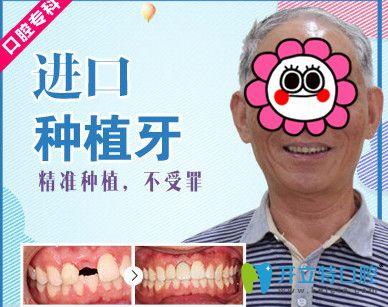 牙大夫与美奥口腔哪个好?美奥口腔种植牙案例来揭晓