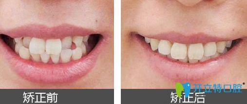 北极星口腔隐形牙齿矫正案例效果