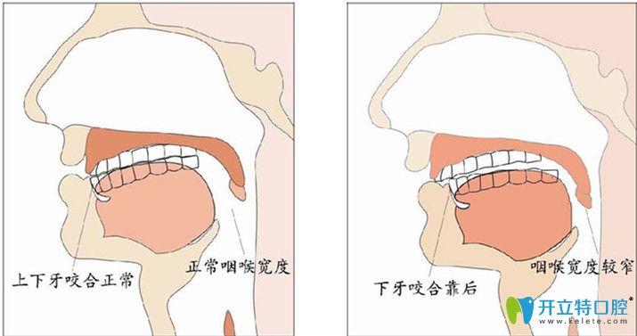 正常和不正常牙齿咬合关系对比图