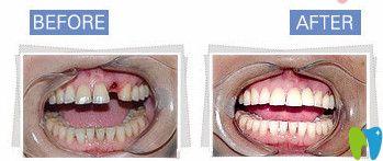 种植牙前后对比照
