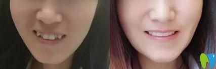 广州圣贝隐形牙齿矫正前后对比图