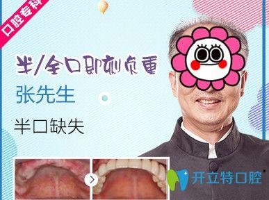 杭州美奥口腔半口牙即刻种植案例对比图