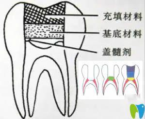牙齿治疗:间接盖髓术和直接盖髓术的区别及适应症汇总