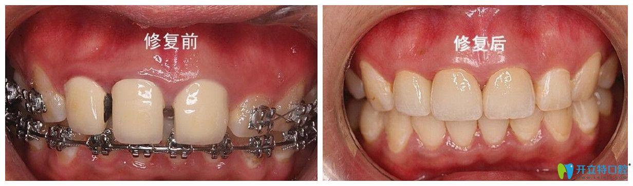 唐山北极星口腔赵中华牙齿修复案例