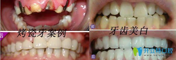 上海东奥口腔烤瓷牙和牙齿美白案例效果图