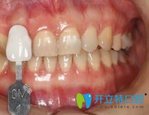 上海东奥口腔的超薄牙贴面成功挽救了我的四环素大黄牙