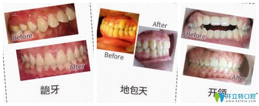 东莞利尔口腔好不好?牙齿矫正案例效果对比图来验证