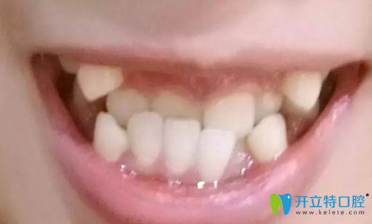 在郑州唯美口腔正畸18个月后,分享反颌牙齿矫正经历和照片