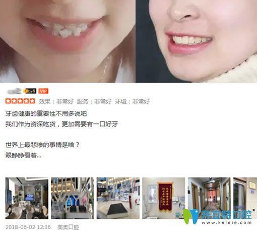 听在天津做过种植牙和牙齿矫正的牙友说美奥口腔收费不高