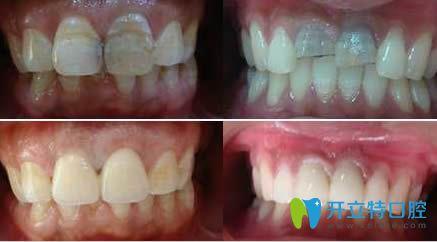 郑州莫三心牙体修复案例效果对比图