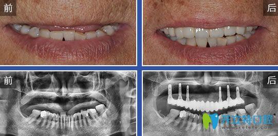 广州圣贝口腔正规吗?来听一听牙齿矫正种植牙顾客怎么评价