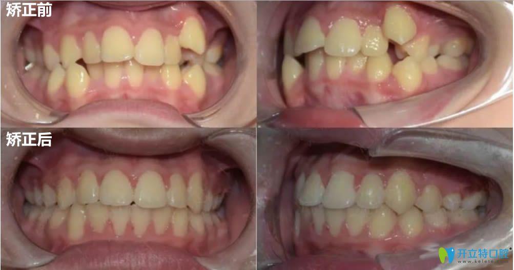 中山贝贝口腔牙齿拥挤不拔牙前后对比效果